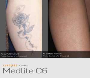 Before and After Tattoo removal treatment