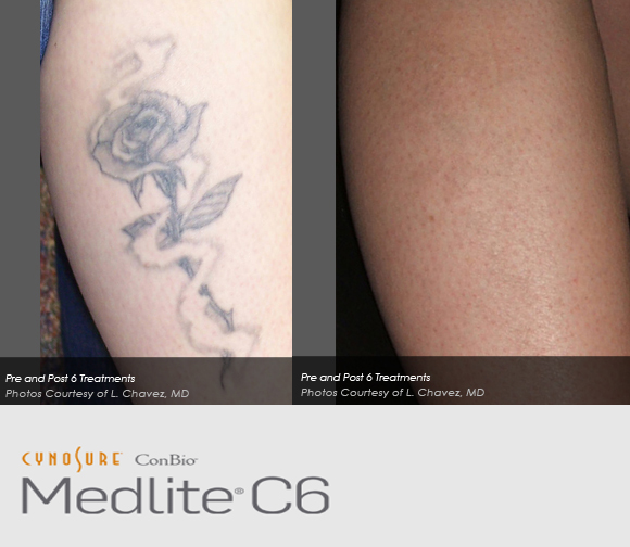 laser removal ozmedica aesthetic clinic