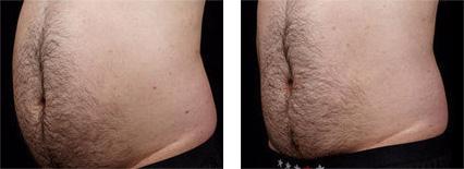 non invasive fat loss
