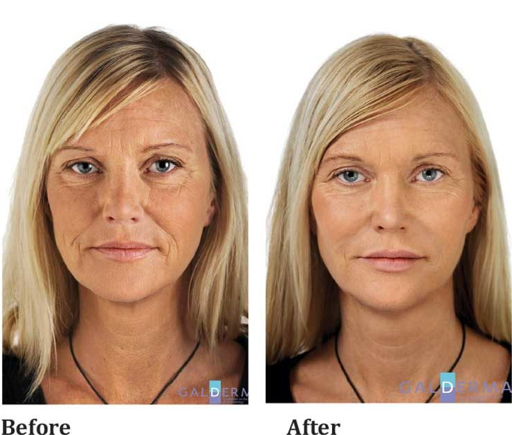 anti-wrinkle-female
