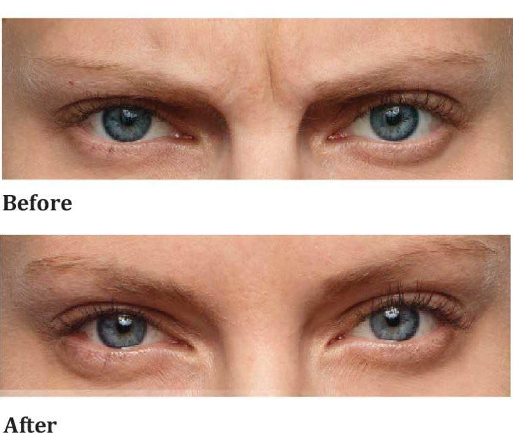 anti-wrinkle-female-eye