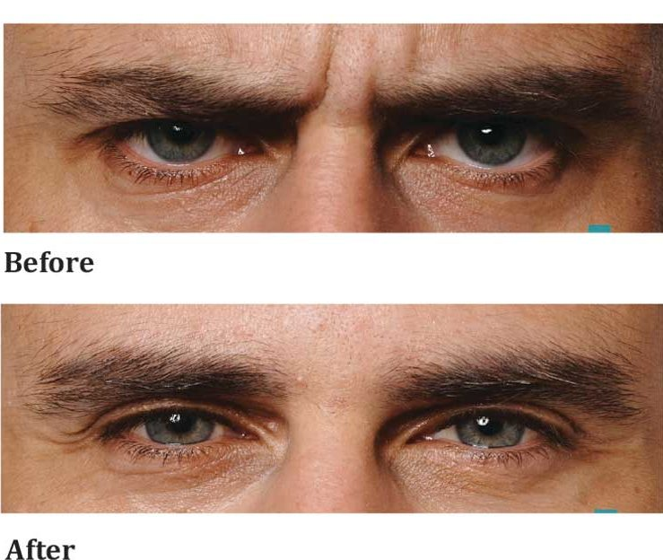 anti-wrinkle-male-eye