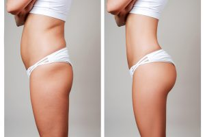 how to loose weight quick