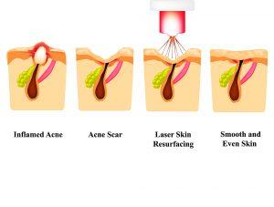 acne scars