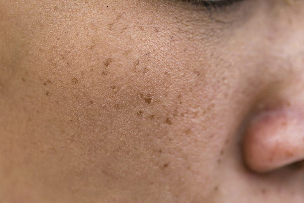 freckle removal laser