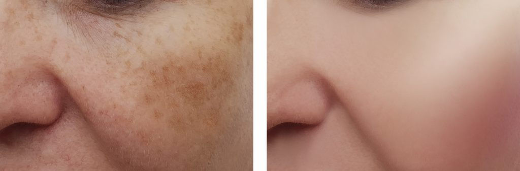 pigmentation skin
