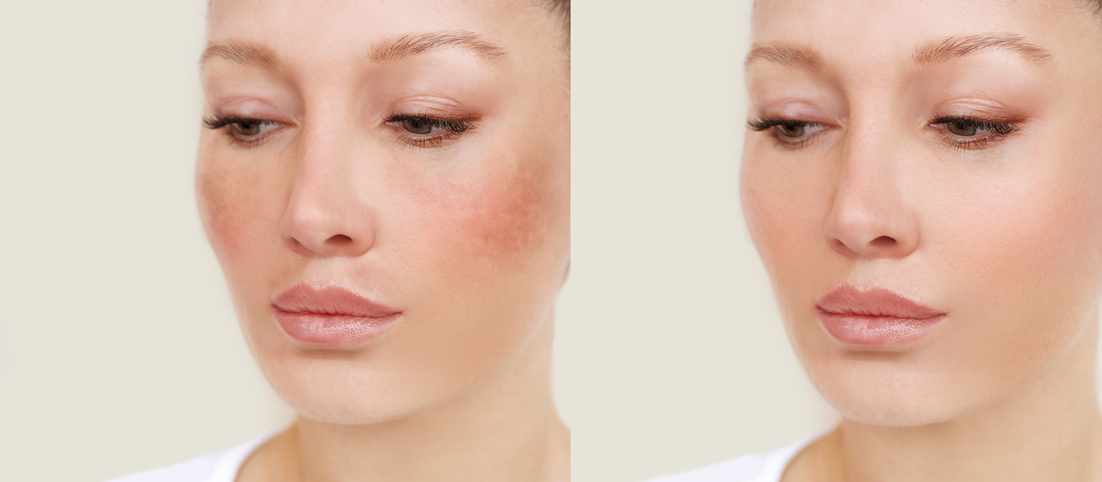 skin discoloration patches