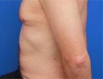 fat reduction in arms