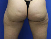 fat reduction thighs