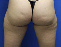 fat reduction in thighs