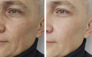 melbourne skin laser clinic