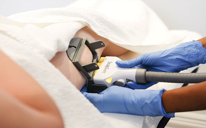 laser treatment for stretch marks