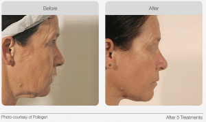 serious face lifting effect results Ozmedica Aesthetic Clinic