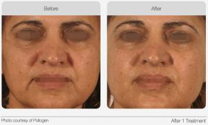 TriPollar Radio Frequency (RF) Skin Tightening results