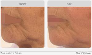 TriPollar Radio Frequency (RF) Skin Tightening Ozmedica Aesthetic Clinic