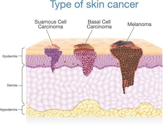 skin cancer clinic near me