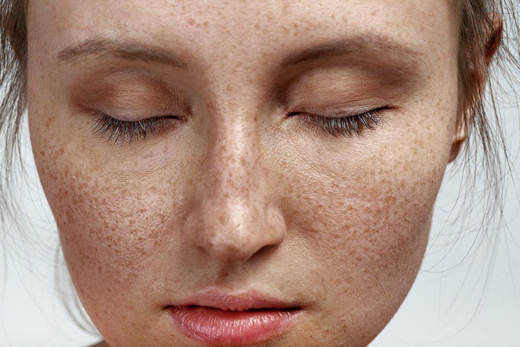 Freckles treatments
