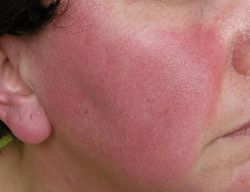 papulopustular rosacea